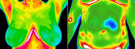 Thermography is Digital Infared Thermal Imaging